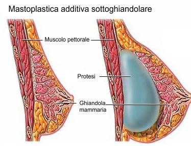 mastoplastica a bologna e provincia