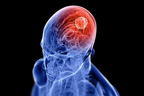 neurochirurgia a Bologna e provincia