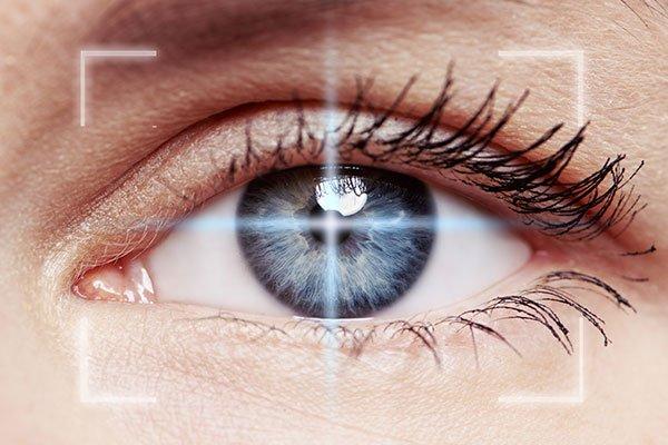 Intervento al glaucoma